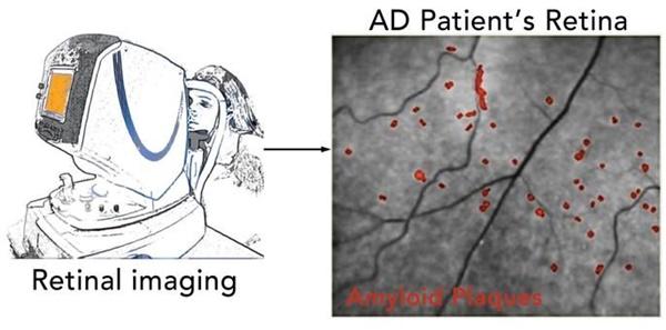 망막 속 아밀로이드 축적량으로 치매 진단